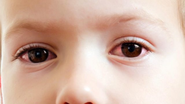 Pink eye in toddlers: Everything you need to know