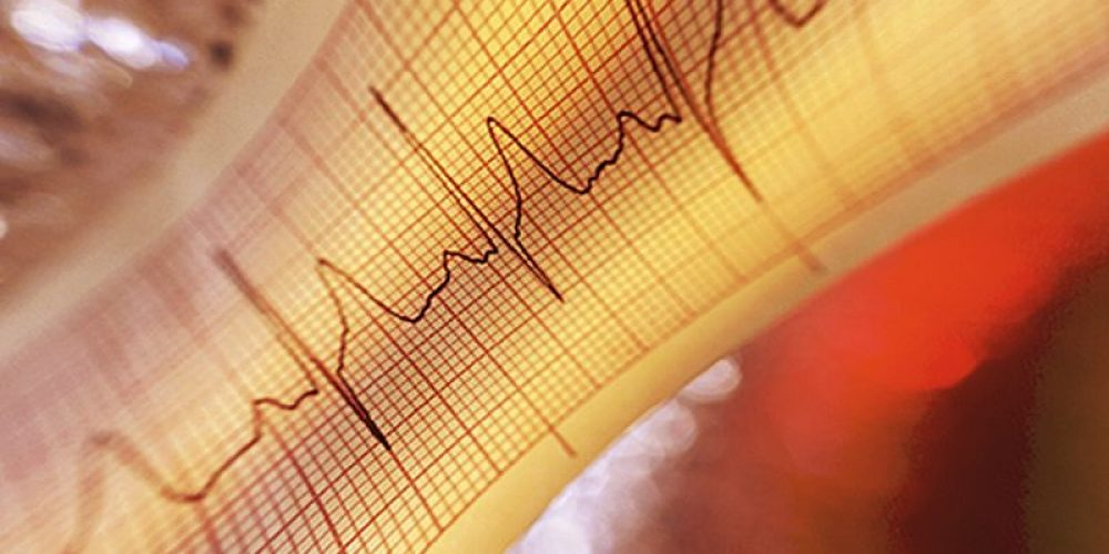 Radiation Rx Might Ease a Dangerous Irregular Heart Beat