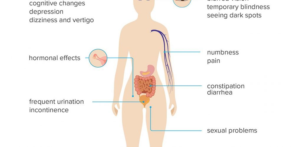 Signs and symptoms of MS in women