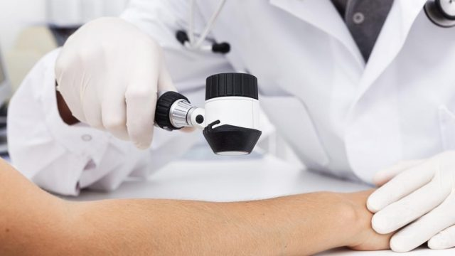 This vitamin D mechanism helps combat melanoma