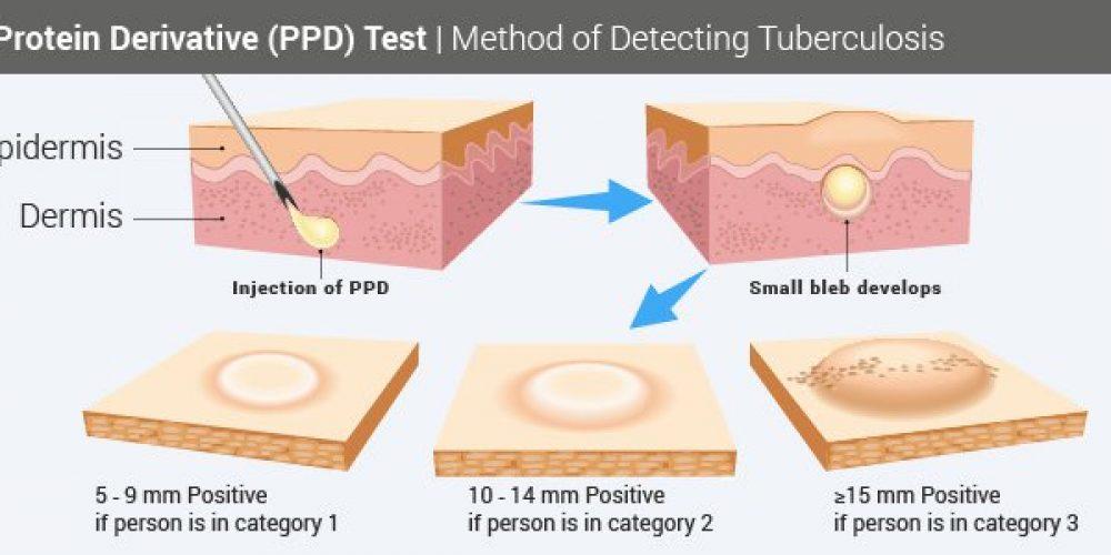 Tuberculosis Skin Test (PPD Skin Test)