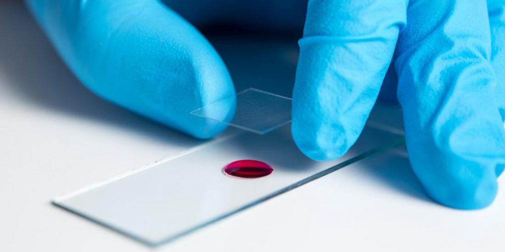 What is an alanine aminotransferase (ALT) blood test?