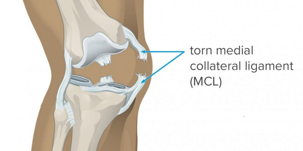 What to know about MCL tears