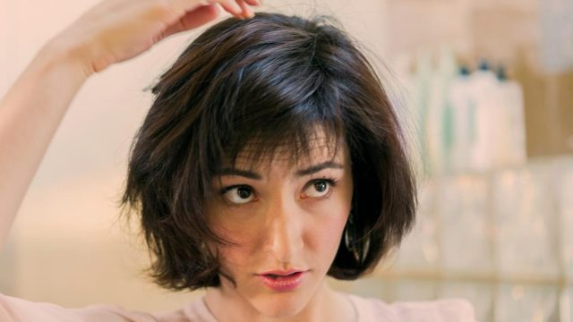 Can seborrheic dermatitis cause hair loss?