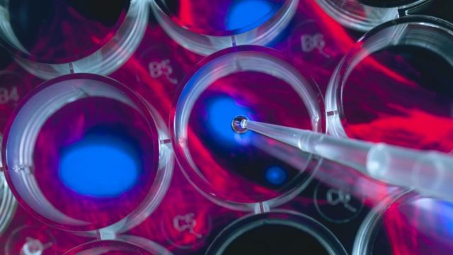 Companies selling risky stem cell products receive FDA warning