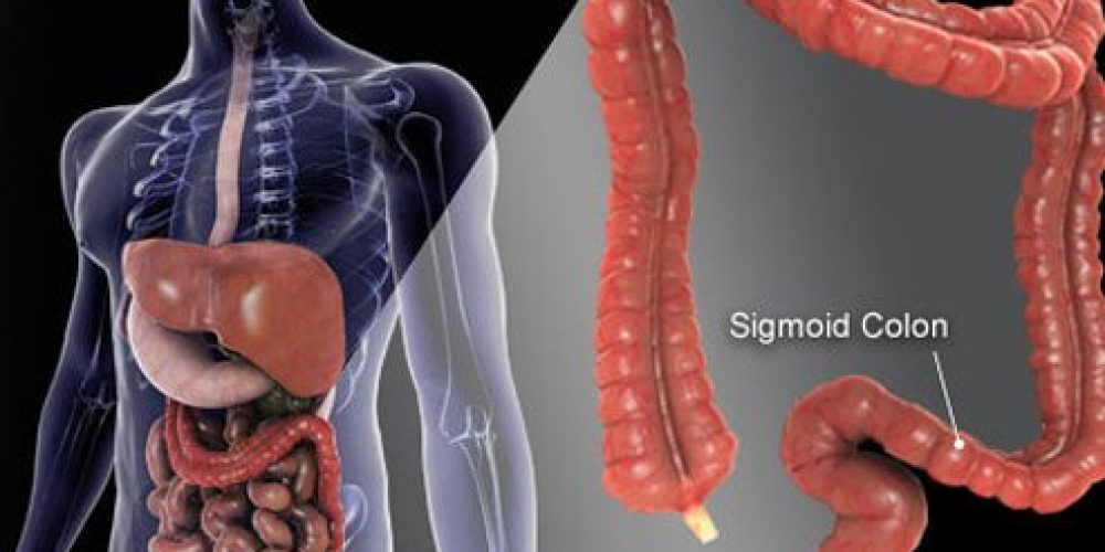 Early Warning Signs and Stages of Colon Cancer
