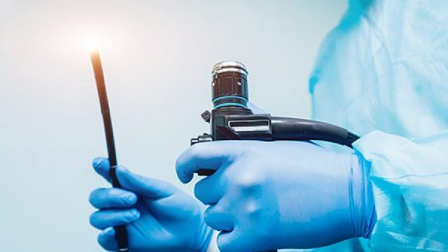 Endoscopy (EGD) Procedure