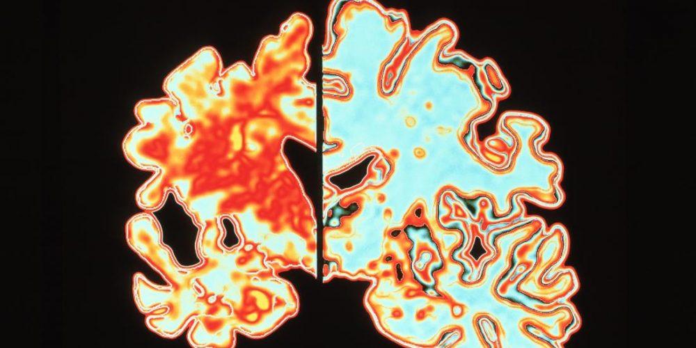 Experimental drug may prevent Alzheimer's disease