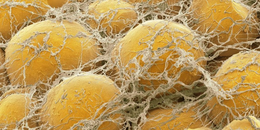 Fat cells may explain why melanoma becomes 'aggressive and violent'