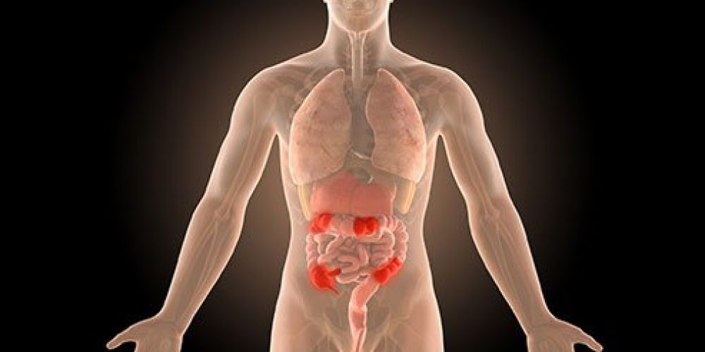 Is Crohn's Disease Contagious?