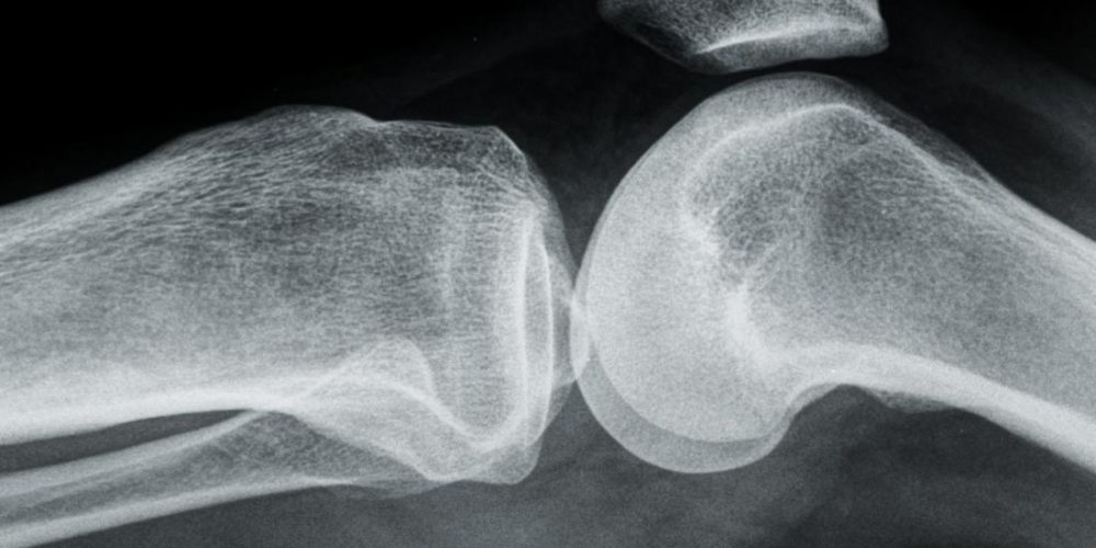 Osteoarthritis: Can an antioxidant offer protection?