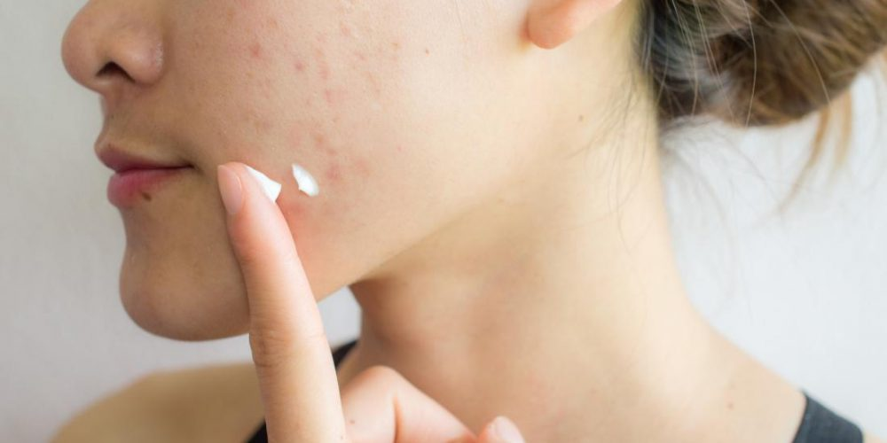 The best ways to get rid of acne scars