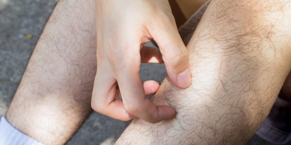 What can cause itchy lower legs?