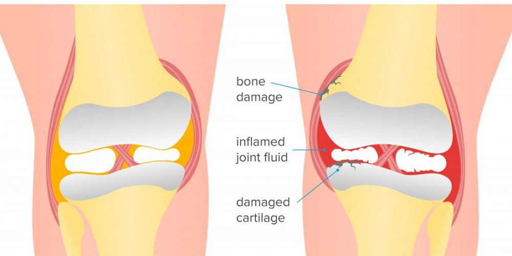 What to know about psoriatic arthritis of the knee