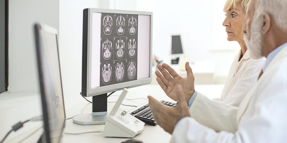 Alzheimer's: Brain changes may occur 34 years before symptoms
