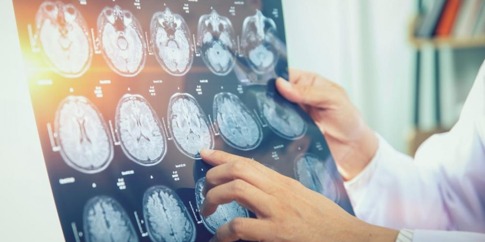 Brain cancer: Lithium may restore cognitive function after radiation