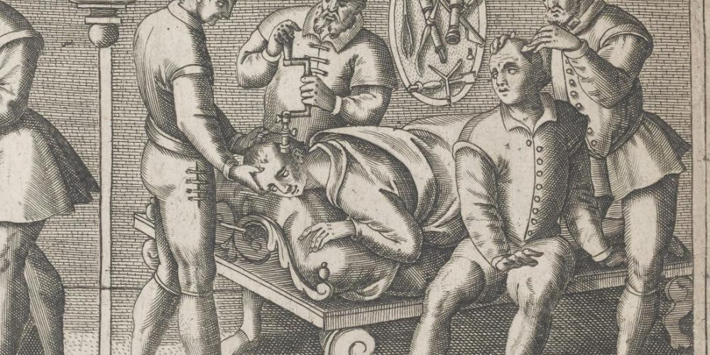 Curiosities of medical history: Trepanation