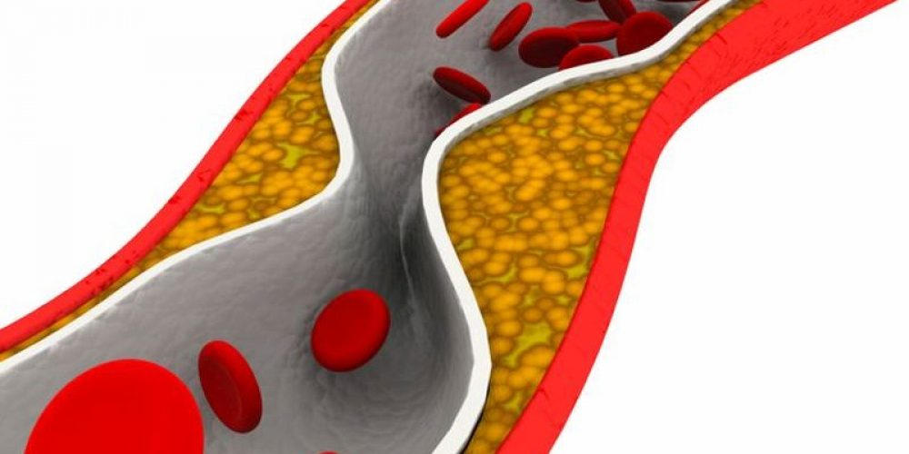 Heart Attack Treatment Could Cut 'Bad' Cholesterol by Half Within Hours