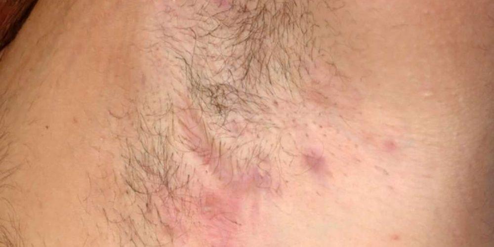 Hidradenitis suppurativa: What to know