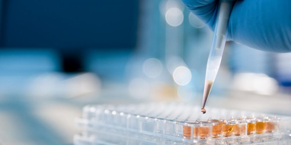 Pancreatic cancer: New approach may prolong survival