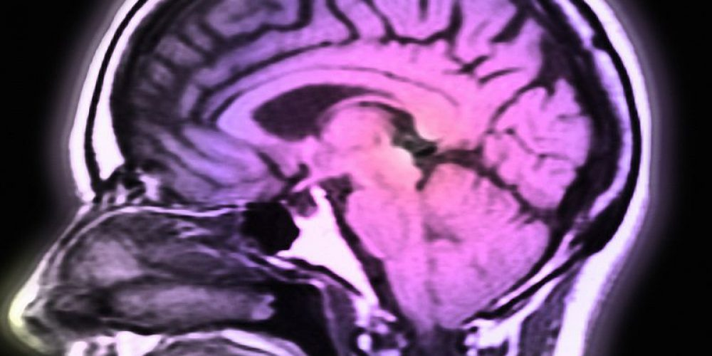 Small Trial Provides New Hope Against Parkinson's Disease