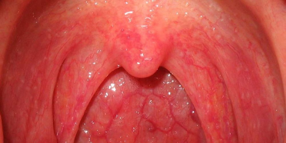 What causes bumps in the back of the throat?