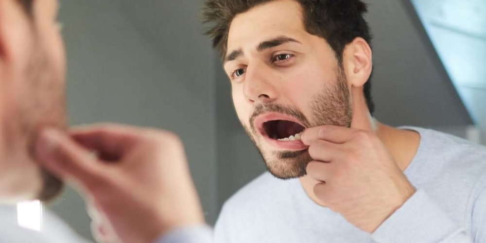 What is the soft palate?