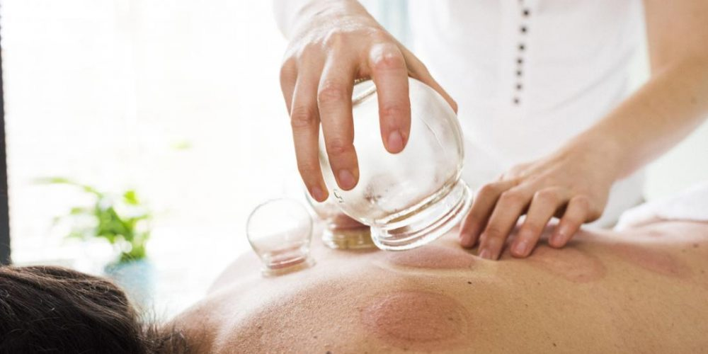 What to know about cupping therapy