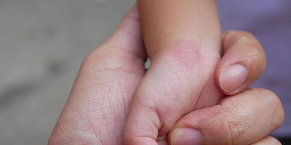 What to know about skeeter syndrome
