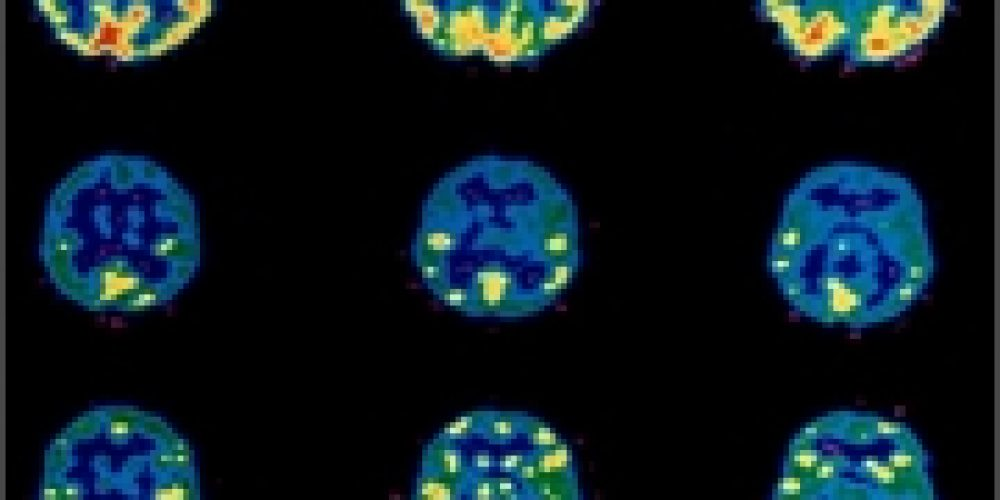 Could Brain Scans Spot Children's Mood, Attention Problems Early?