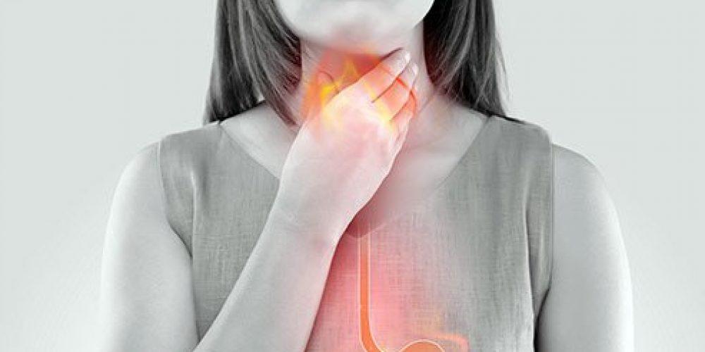 Hiatal Hernia (Symptoms, Diet, Surgery, Treatment)