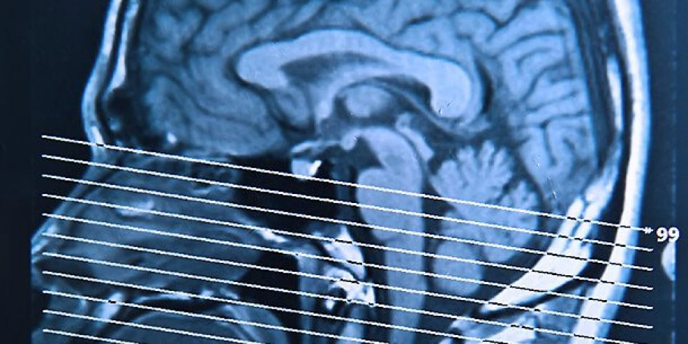 Repeated Boxing Head Injuries Cause Brain Shrinkage