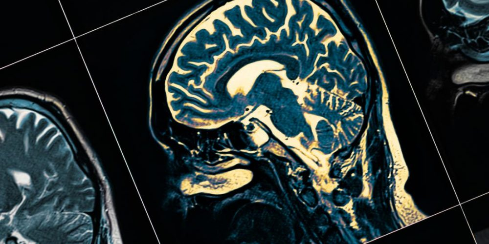 Scientists track Parkinson's journey from gut to brain in mice