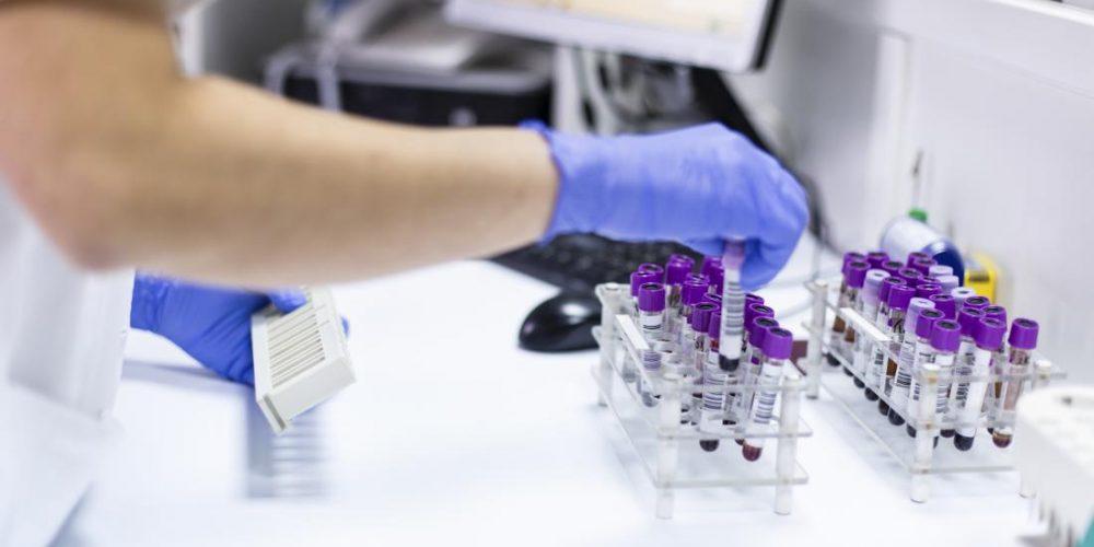 The key to myasthenia gravis progression may be hidden in serum