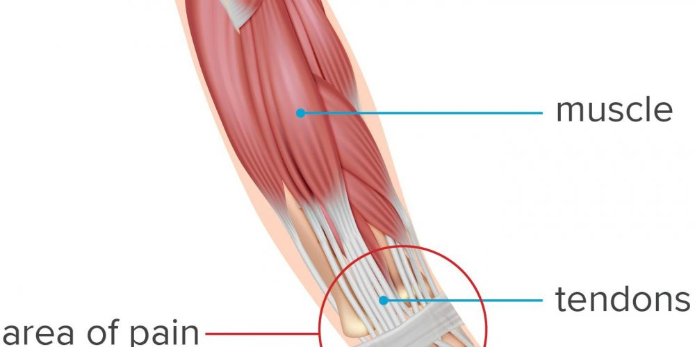 What to know about wrist tendonitis