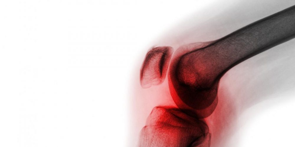 Osteoarthritis: New compound may stop the disease