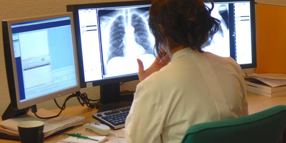 What to know about lung cancer
