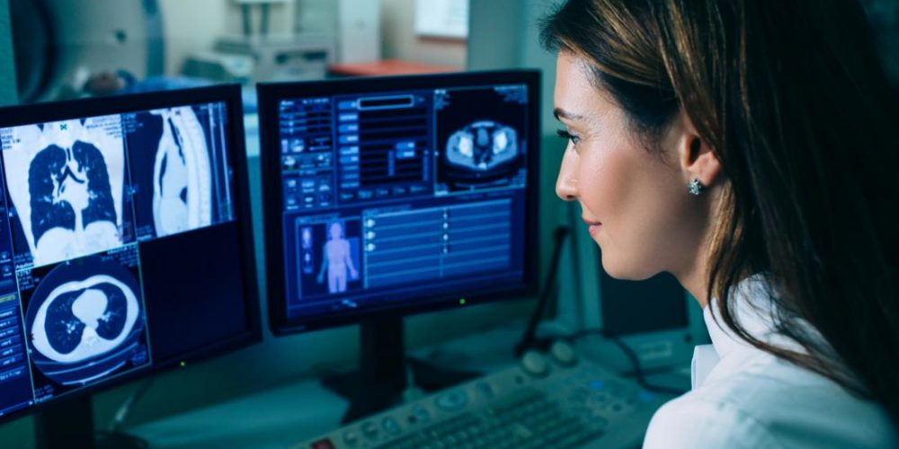 Artificial intelligence better than humans at spotting lung cancer