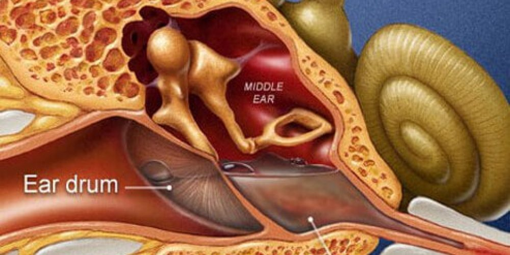 Inner Ear Infection (Labyrinthitis)