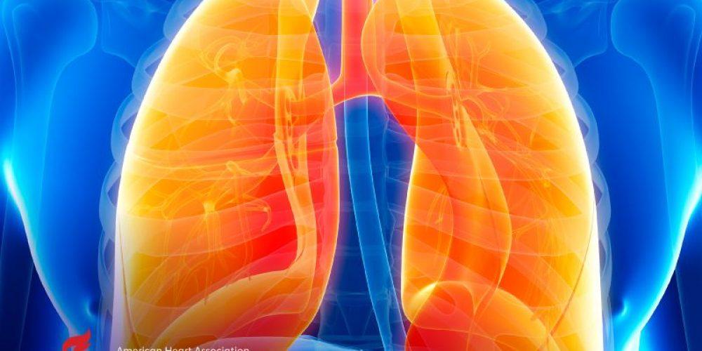 AHA News: Emphysema May Raise Risk of Ruptured Aneurysms