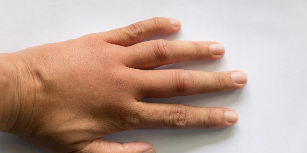 Causes of swollen hands