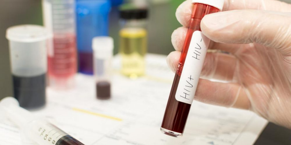 Ending HIV transmission: What is the impact of giving out free self-tests?