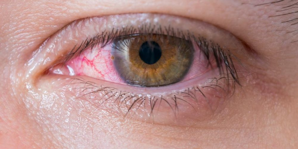 How to treat pinkeye at home