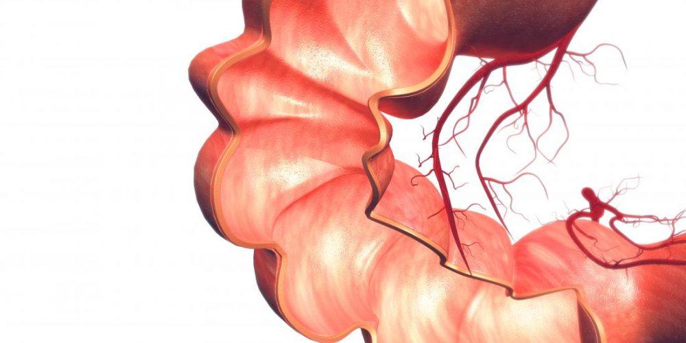 IBD increases prostate cancer risk by fivefold
