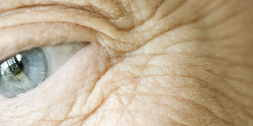 Skin moisturizer could reduce risk of disease