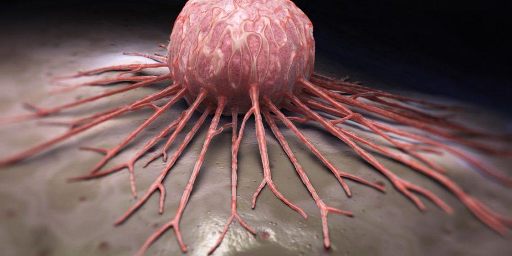 'Super tumor suppressor' found to prevent pancreatic cancer