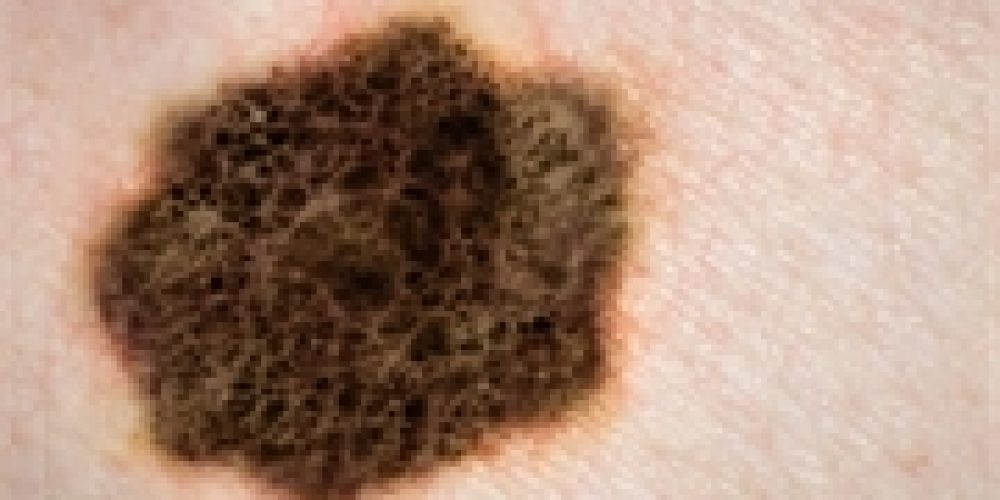 Weight-Loss Surgery Might Also Lower Skin Cancer Risk