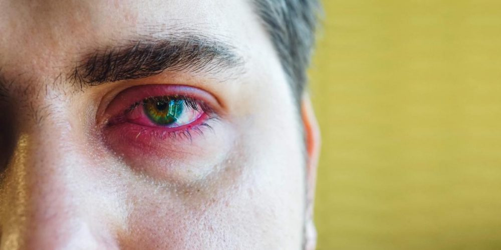 What can cause a sore eyelid?