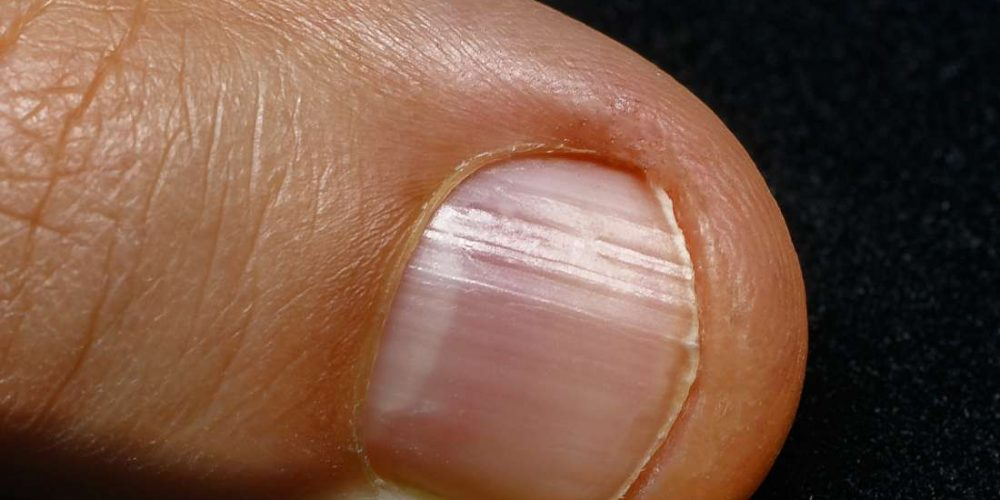 What to know about not having a half-moon on the nails