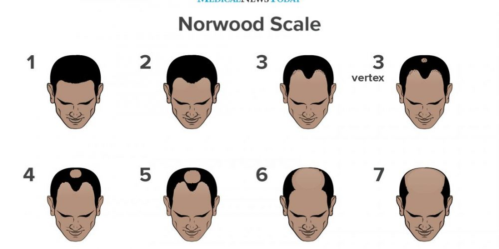 What to know about the Norwood scale and male pattern baldness